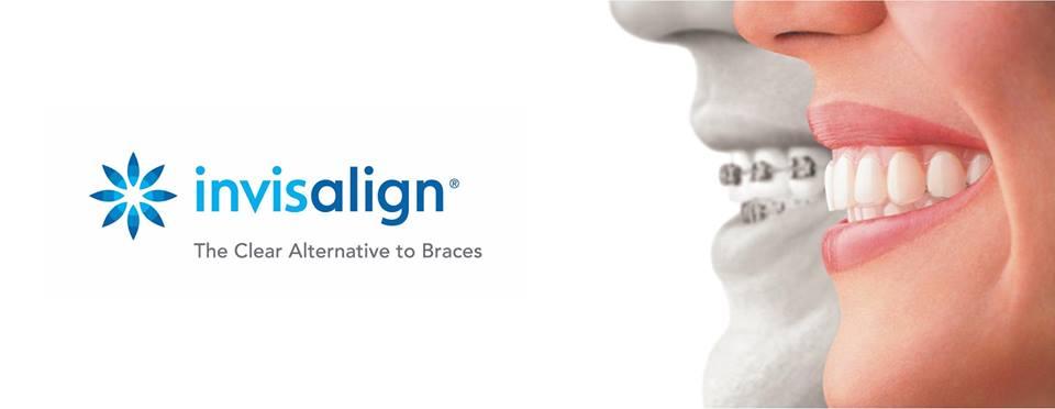 Invisalign la nueva tecnología de ortodoncia invisible