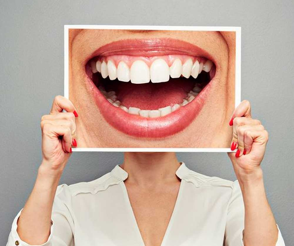 que dicen los dientes de ti estetica dental